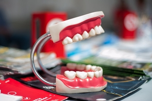 Изберете Dental Implants 34