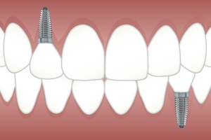 Намерете Dental Implants 35