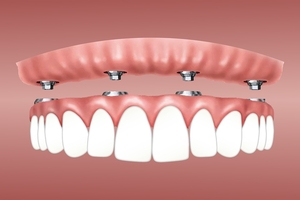 Info about Dental Implants 39