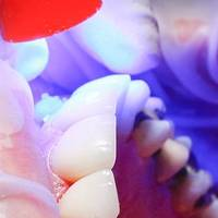 Невероятни Dental Implants Bulgaria 22