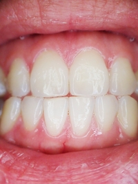 Information about Invisalign 25
