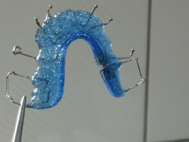 Best Deals on Invisalign 39